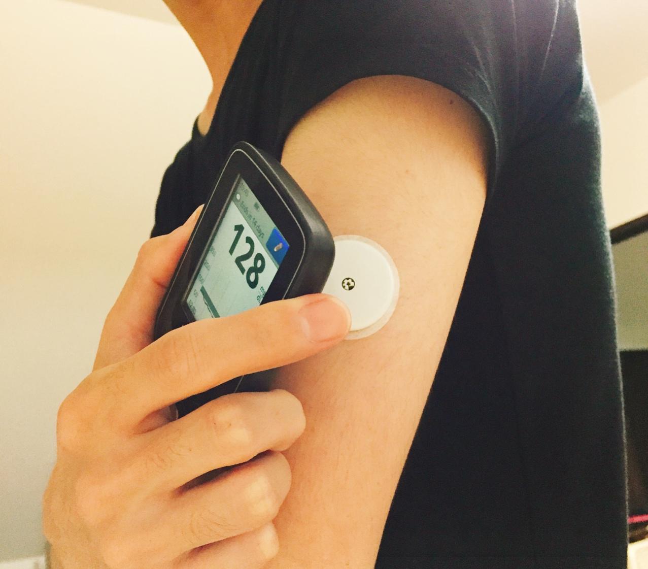 持続血糖測定器【FreeStyleリブレ】で,自分の24時間血糖測定を開始しました.