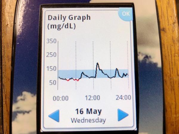 ハヤシライスで午後の血糖値ピーク200|糖尿病内科医のフリースタイルリブレ自己血糖記録