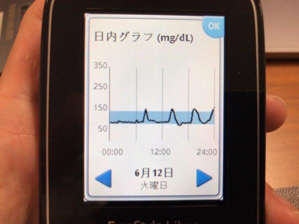 リブレセンサー交換日,カツカレーの威力が測れなかった1日|糖尿病内科医のフリースタイルリブレ自己血糖記録