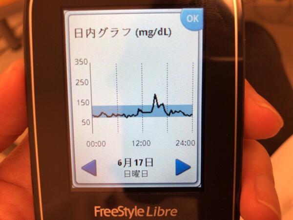 熱海からの帰り道,台湾ラーメンで血糖値が200に上昇した1日|糖尿病内科医のフリースタイルリブレ自己血糖記録
