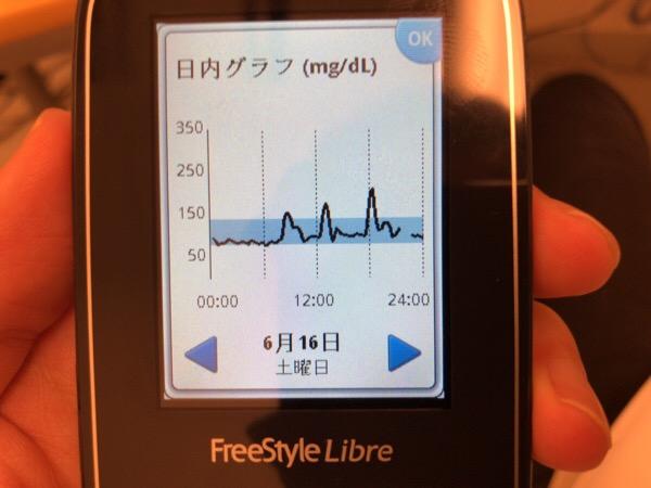 血糖値の上がらないコカ・コーラCLEARを飲みながら熱海合宿に移動した1日|糖尿病内科医のフリースタイルリブレ自己血糖記録