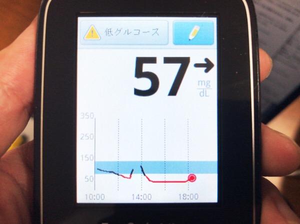リブレセンサー交換日.起動初日は血糖値が途切れたり低めに測定されたりした1日|糖尿病内科医のフリースタイルリブレ自己血糖記録
