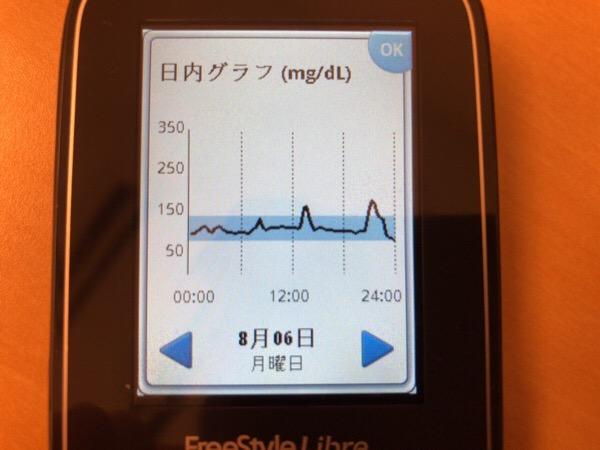 忙しい外来診療日は間食する暇がなく,膵臓への負担が小さい1日|糖尿病内科医のフリースタイルリブレ自己血糖記録