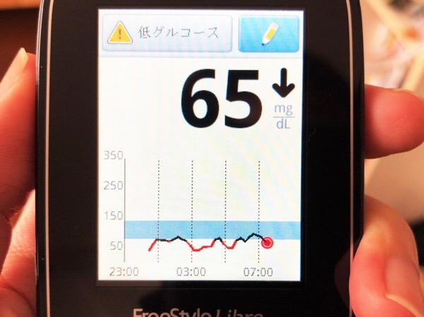 リブレセンサー起動初日の不安定さが顕著で,改善に期待する1日|糖尿病内科医のフリースタイルリブレ自己血糖記録