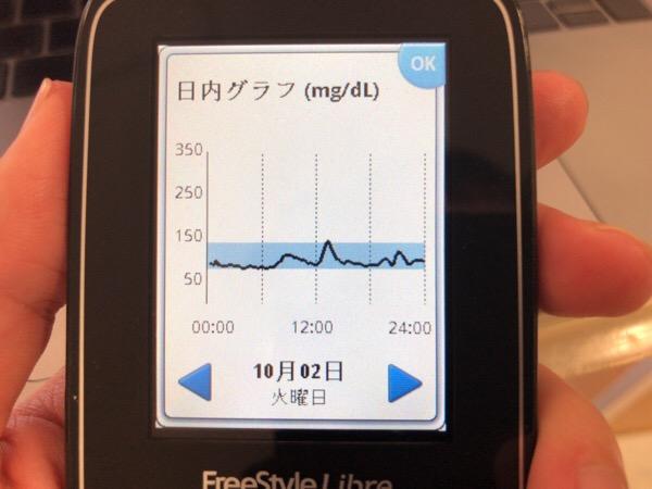 昼食の肉じゃがが血糖値を上げて,夜は糖尿病アドバイザーとして会食した1日|糖尿病内科医のフリースタイルリブレ自己血糖記録