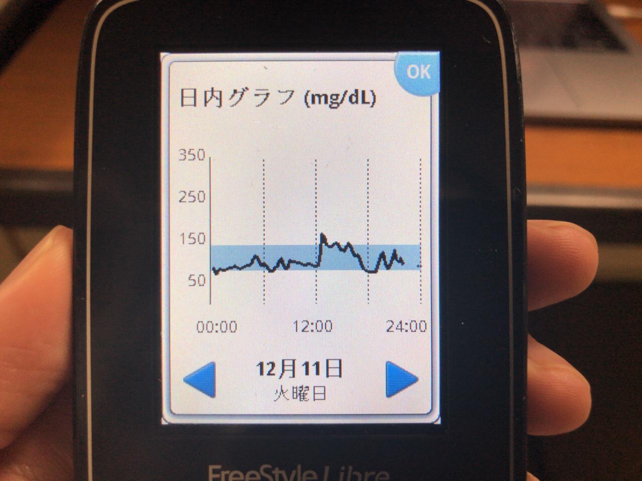 ランチのカレーライスで午後の血糖値が下がらず,夕食後ゴルフレッスンの合間に缶コーヒーで鋭く血糖値を上げた1日|糖尿病内科医のフリースタイルリブレ自己血糖記録